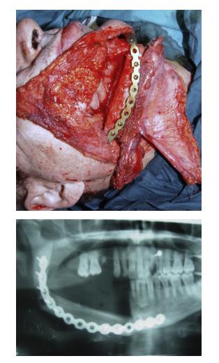 hpv genital simptome cancer colorectal metastases