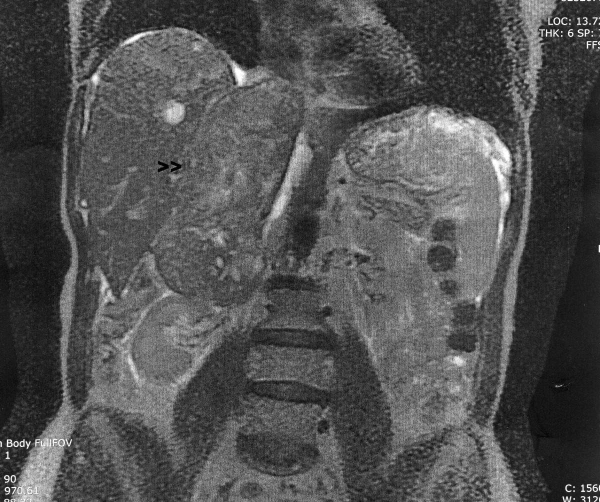 sarcoma cancer po polsku cervical cancer by age