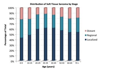 sarcoma cancer treatment success rate