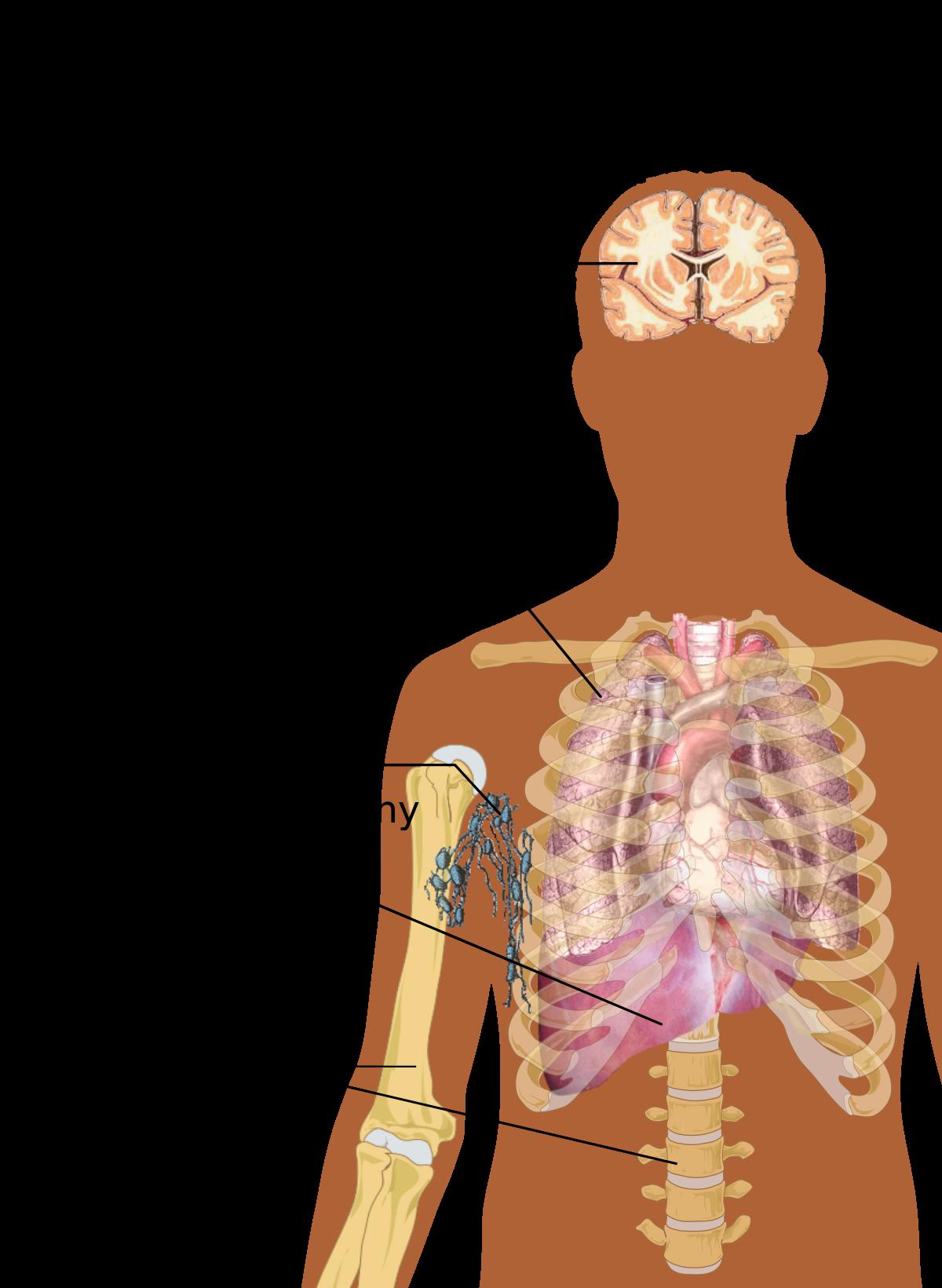 sarcoma cancer warning signs