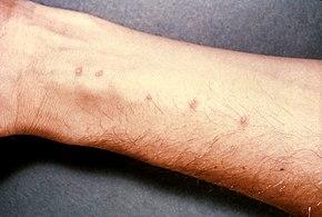human papillomavirus infections epidemiology pathogenesis and host immune response foot wart early stage