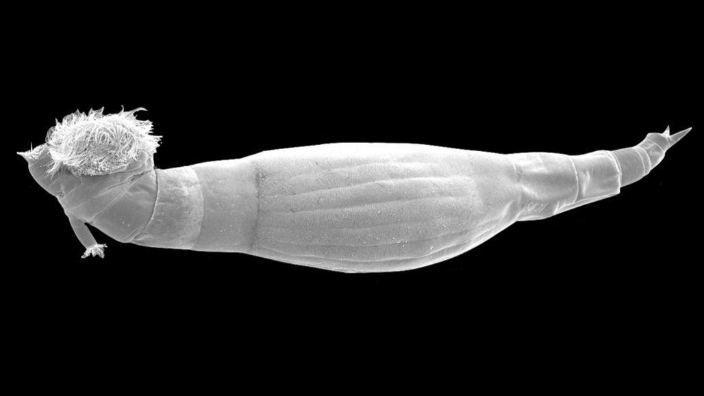 cancer papiloma humano sintomas wart treatment under fingernail