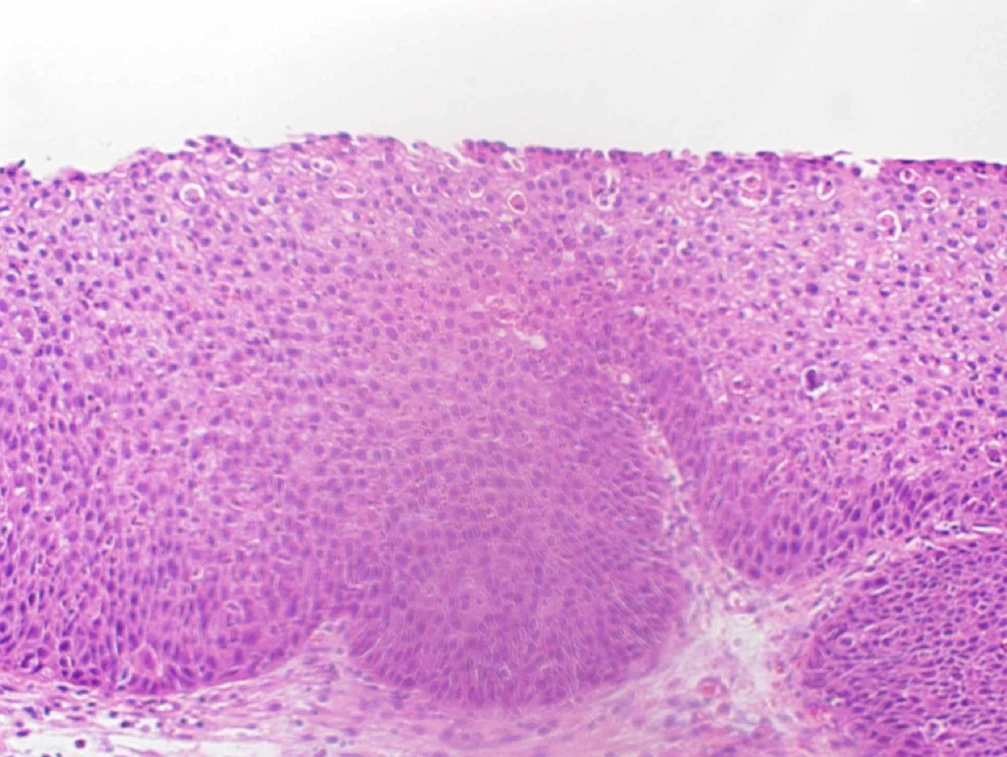 virus papiloma humano contagio de mujer a hombre puppy papilloma mouth