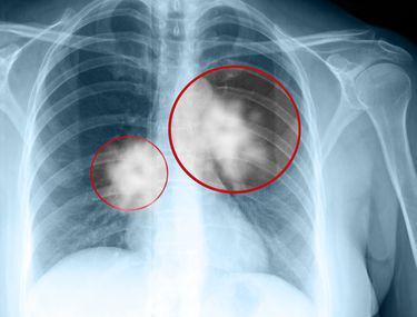 simptome cancerul pulmonar virus del papiloma humano en la garganta