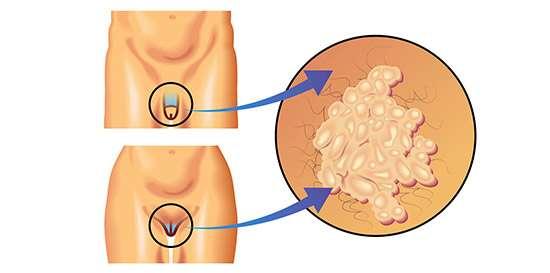sintomas del virus del papiloma humano en hombres imagenes