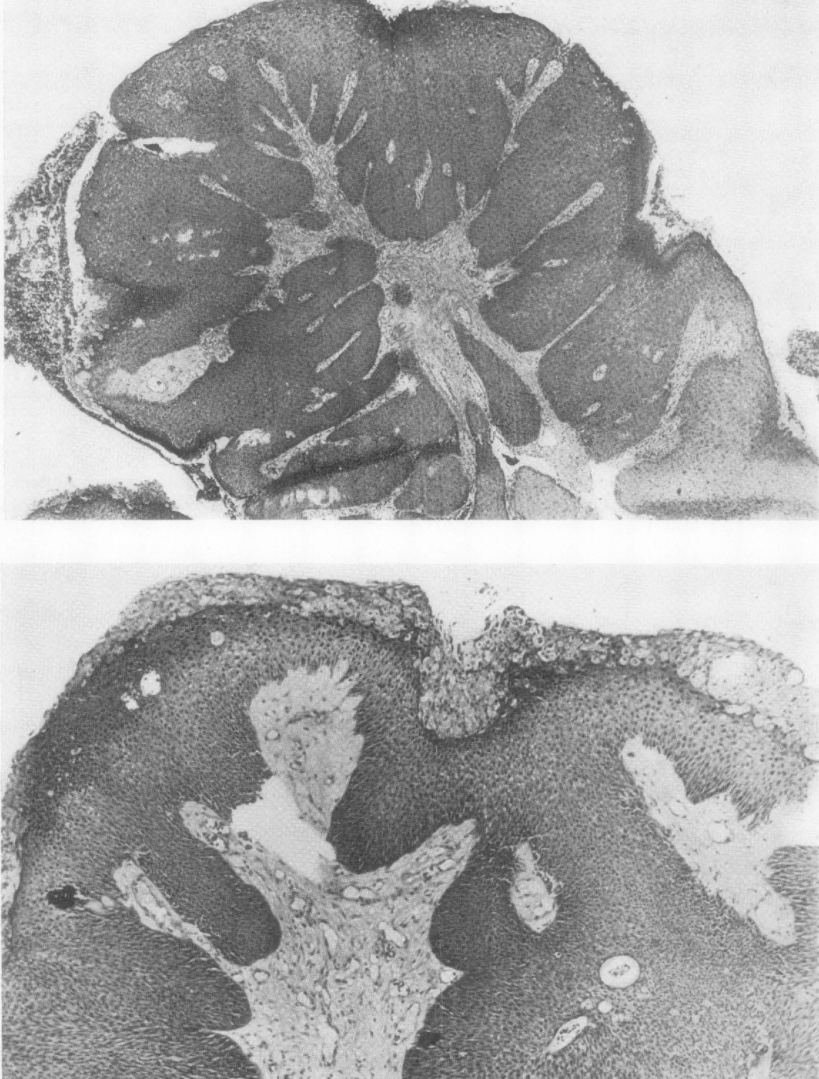 squamous papilloma bronchial