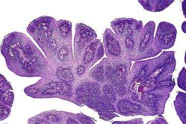 cancer gros intestin pronostic