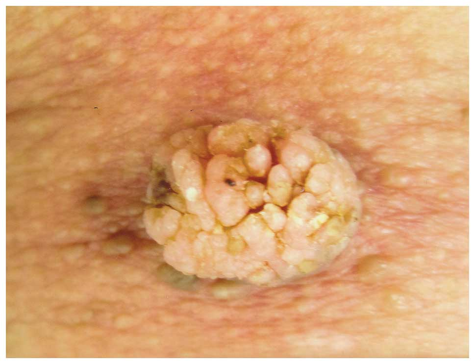 squamous papilloma scalp hpv oropharynx cancer staging