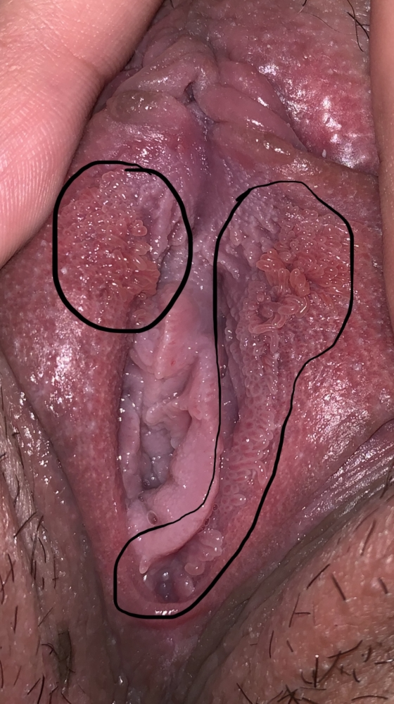 squamous papillomatosis yeast infection hpv treatment mouth