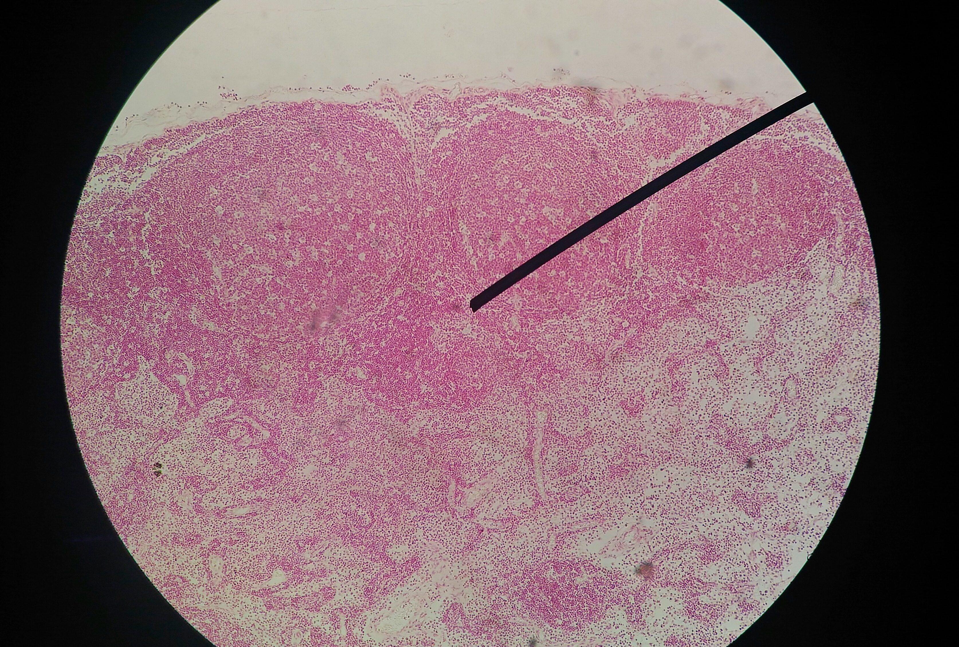 test papilloma virus quando farlo ossiuri e rimedi naturali