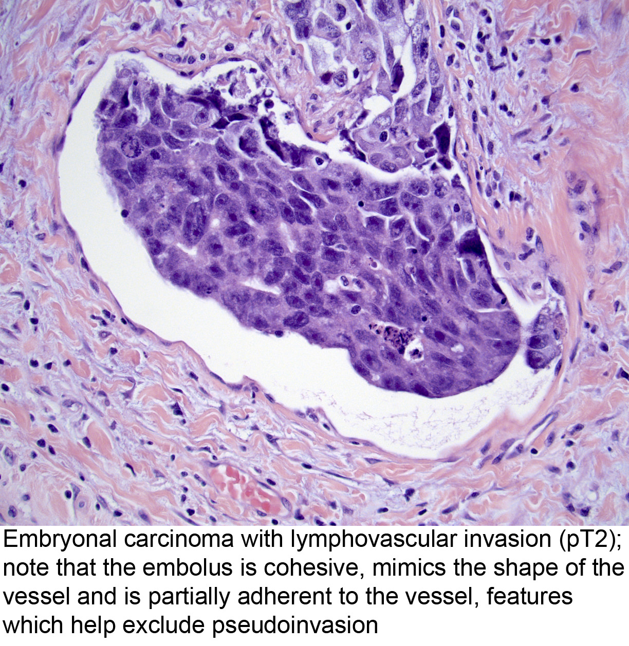 virus del papiloma banos hpv et grossesse compatible