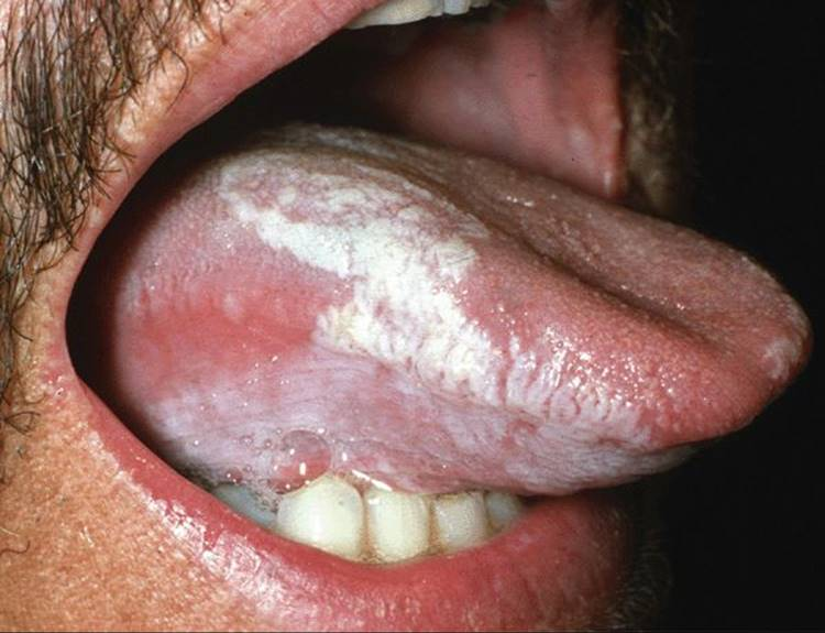 vestibular papillomatosis or wart il papilloma virus si trasmette al feto