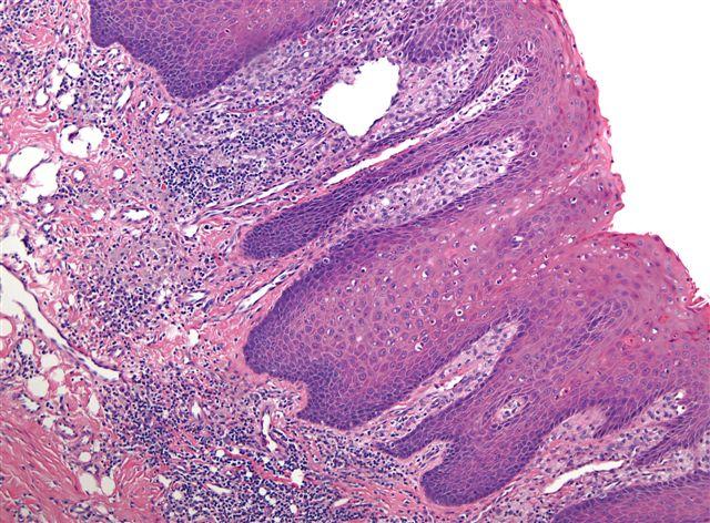 tongue papilloma pathology outlines hpv treatment wart