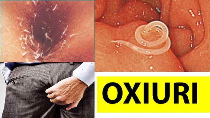 Paraziti intestinali   adventube.ro