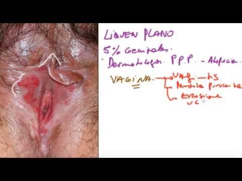 tratamiento para papilomatosis vestibular tecnica de graham oxiuros