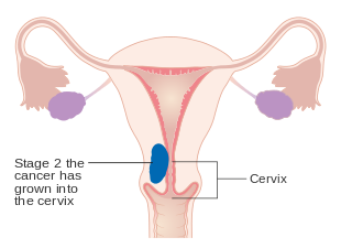uterine cancer late stage symptoms