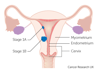 uterine cancer uk medicina para oxiuros