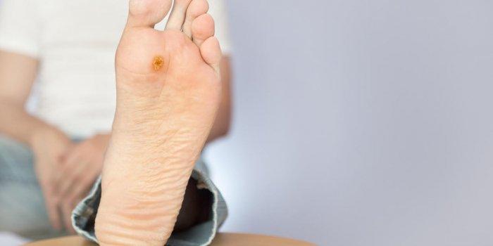 tratament medicamentos pentru oxiuri pareri detoxifiere colon