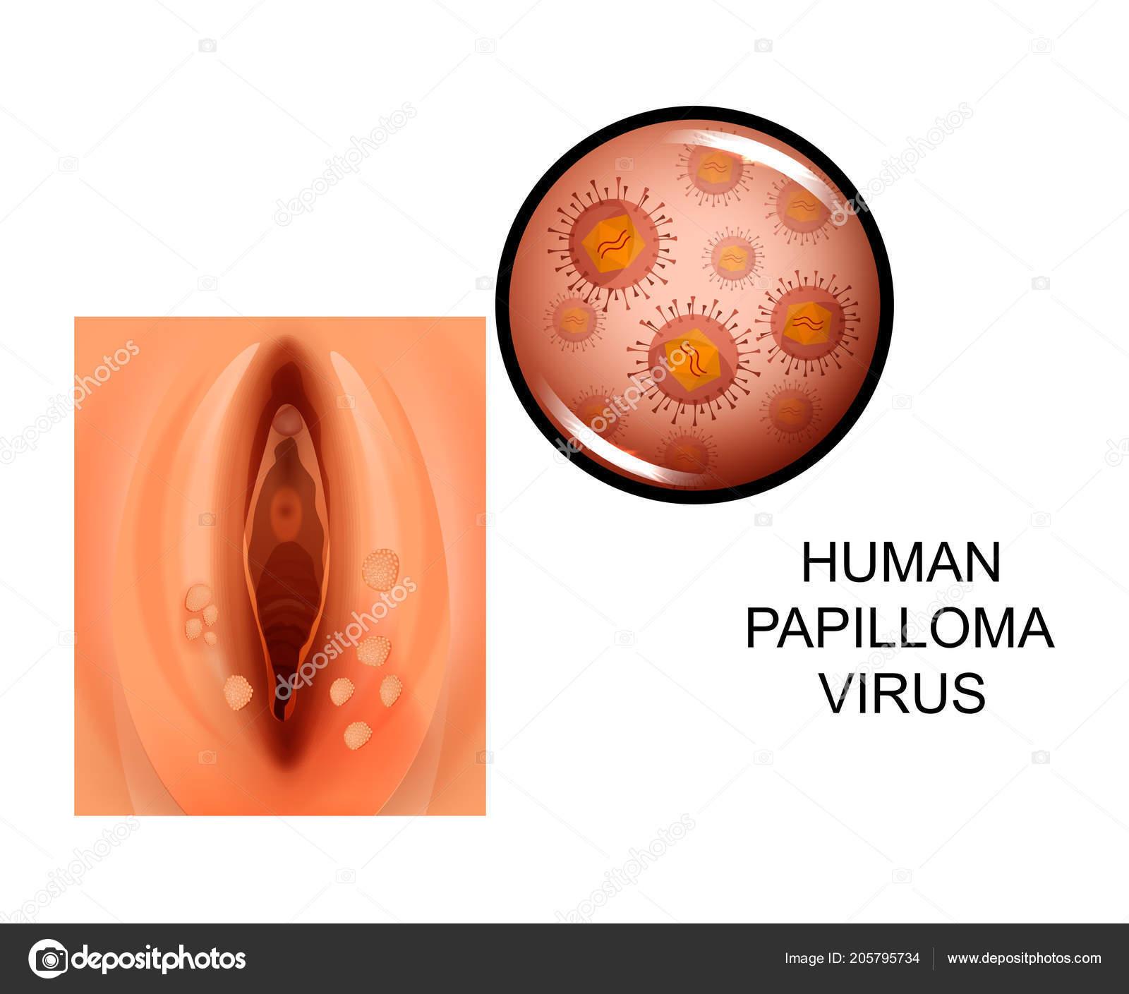 oxiuroza poza human papillomavirus in sinhala