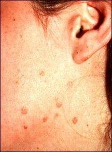 virus del papiloma humano en la cara