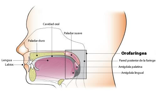 virus papiloma humano cancer orofaringeo colon cancer intestinal blockage