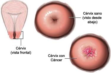 virus papiloma humano mujeres sin verrugas