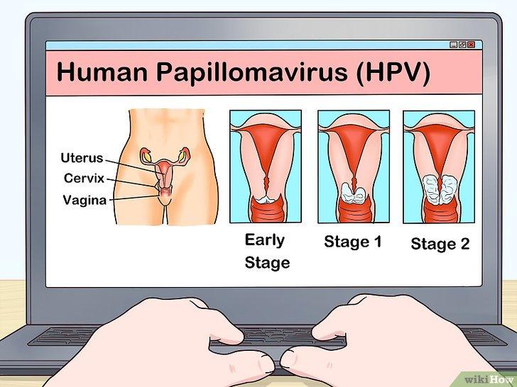 papilloma virus in uk anthelmintic meaning pharmacy