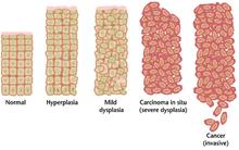 virus papiloma humano y preservativo papilloma uomo vescica