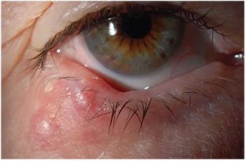 wart on eyelid margin