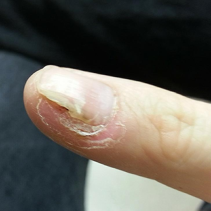 wart treatment under fingernail papillon zeugma pool suites