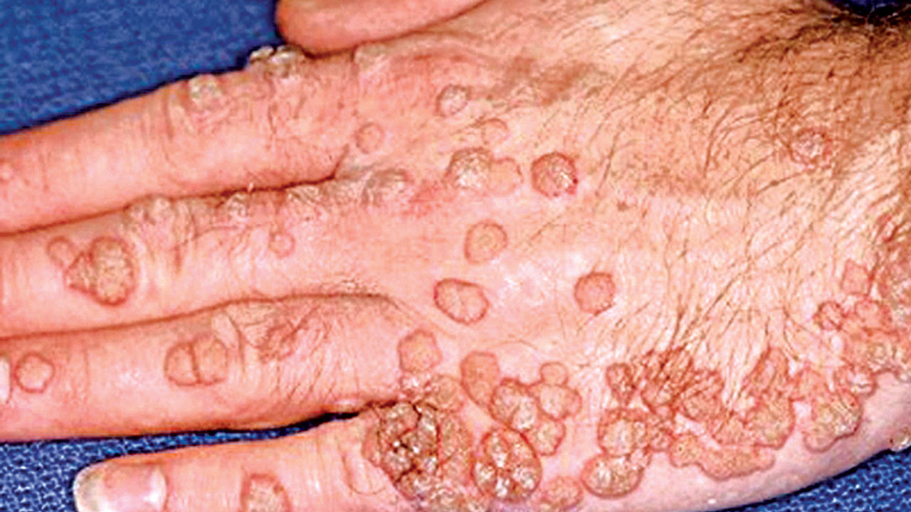 wart virus kill