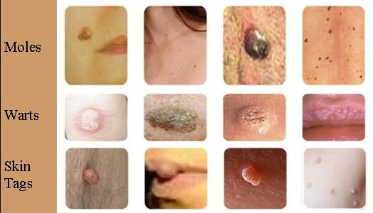 warts on hands skin tags