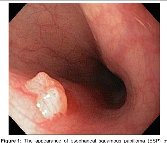 papillomavirus chez lhomme depistage