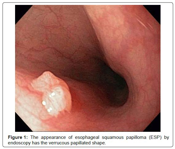 squamous papilloma colonoscopy papilloma virus sintomi nelle donne