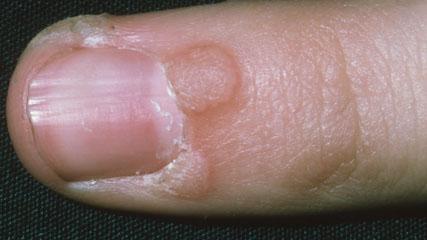 hpv warts finger