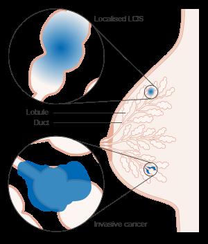 ombladon panarame