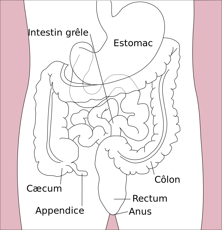 cancer du gros intestin stade 4