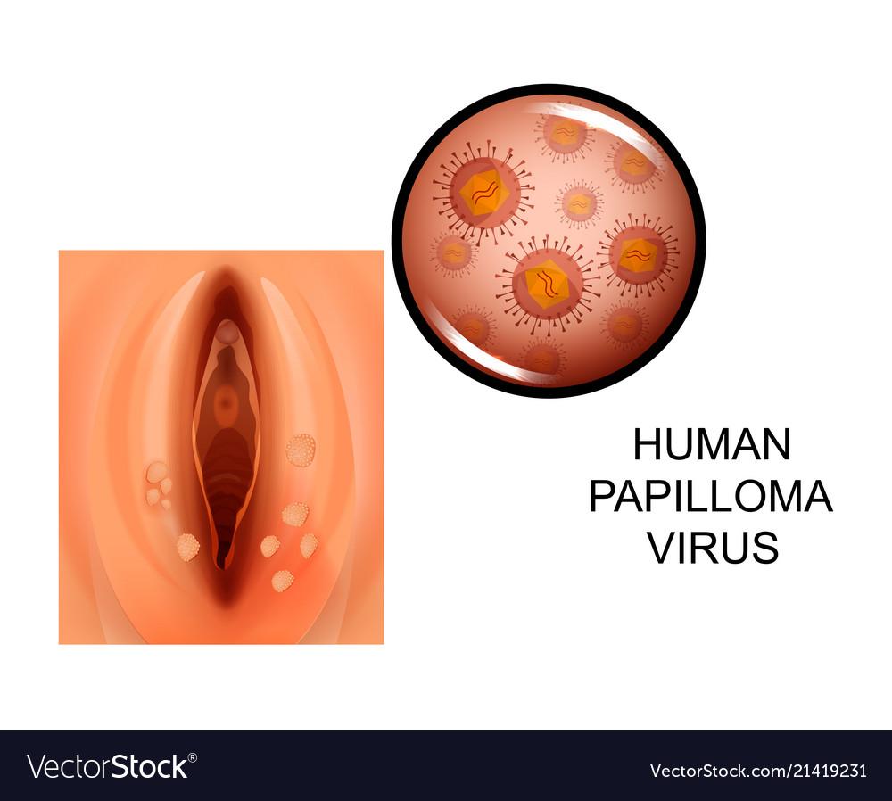 papilloma virusi qartulad papillomatosis breast histology