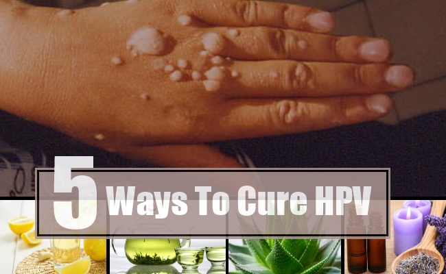 hpv virus treatment at home