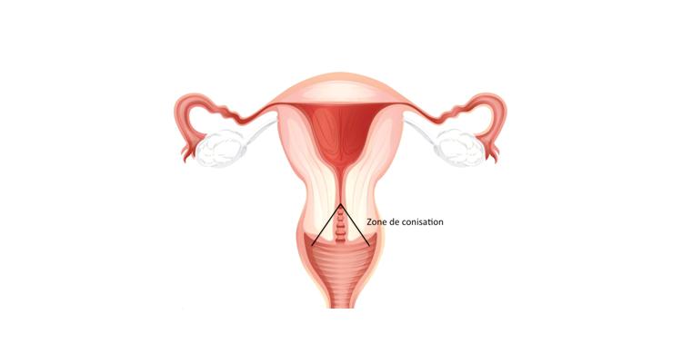 douleur uterus papillomavirus cancer de prostata nivel 8