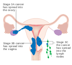 endometrial cancer definition