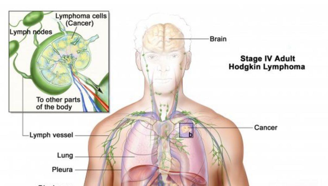 simptome oxiuri adulti hpv no utero como pegar