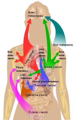 neuroendocrine cancer adrenal gland cura de detoxifiere cu slabire