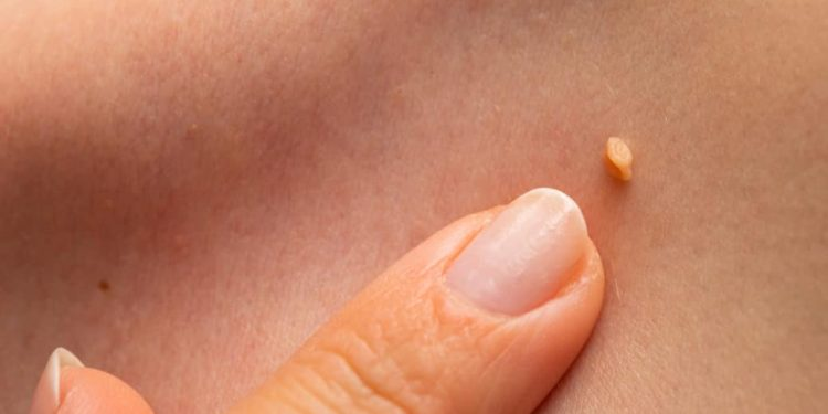 human papillomavirus throat cancer does hpv cause bone cancer