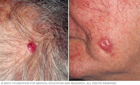cancer de piele genital