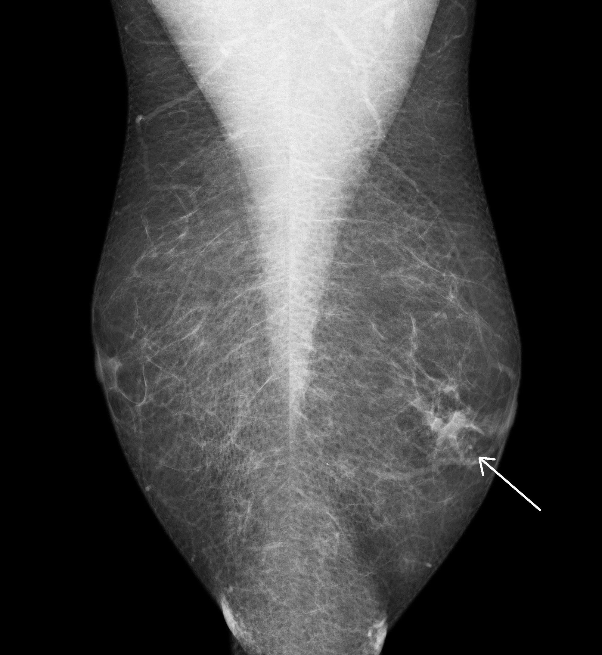 intraductal papilloma breast treatment cancer tiroidian anaplastic simptome