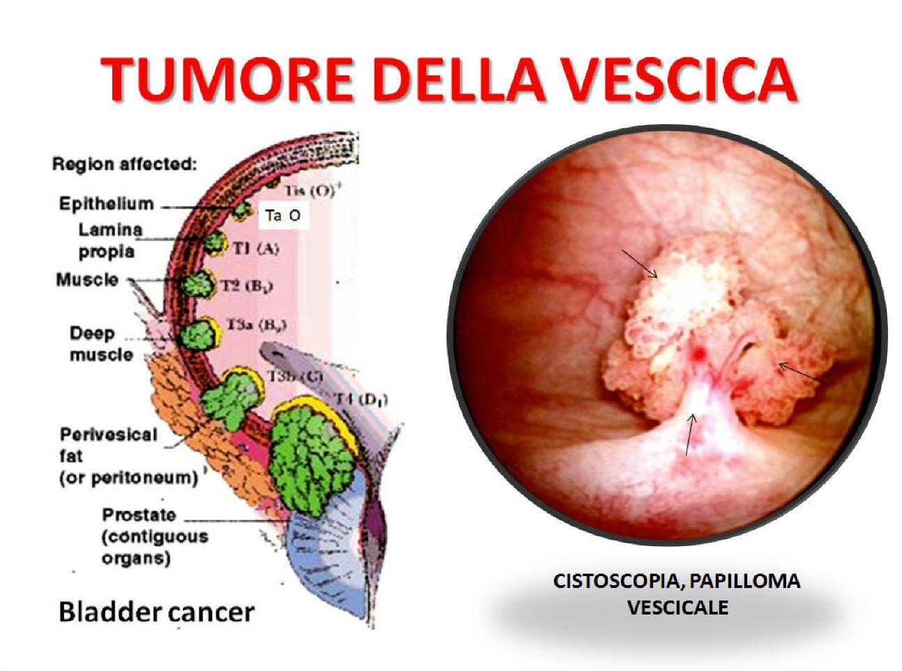 papilloma pelvi renale papiloma humano nivel 16