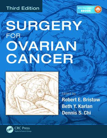 peritoneal cancer book