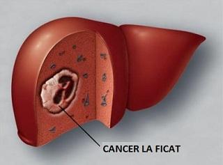 nasal sinus inverted papilloma cancer pulmonar scuamos tratament