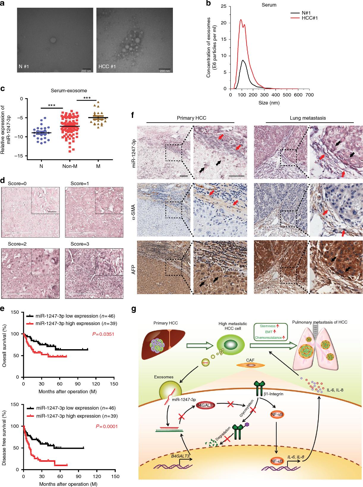hepatocellular cancer lung